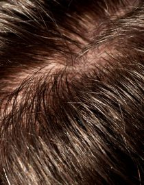 When Menopause Causes Greasy Hair